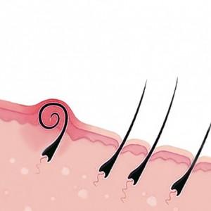 причины пояпвления вросших волос
