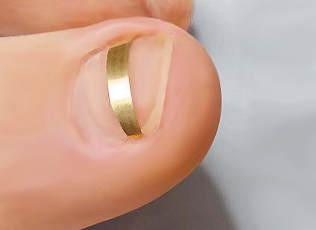 Мази или крема от грибка ногтей