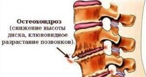 предотвратить остеохондроз