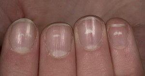 нездоровые ногти2