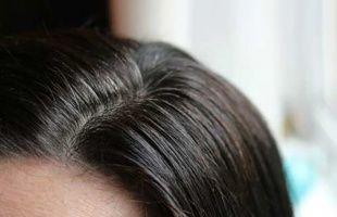 почему рано седеют волосы