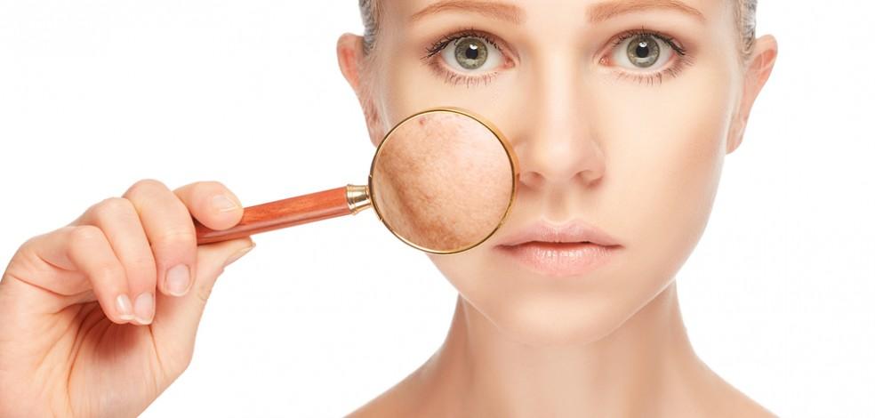 Как увлажнить кожу лица - делимся действенными способами