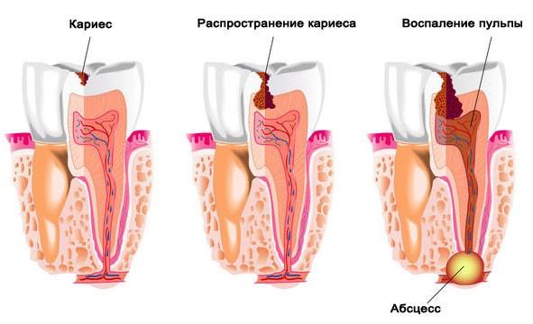 Болит зуб? Как снять боль в домашних условиях народными и современными методами