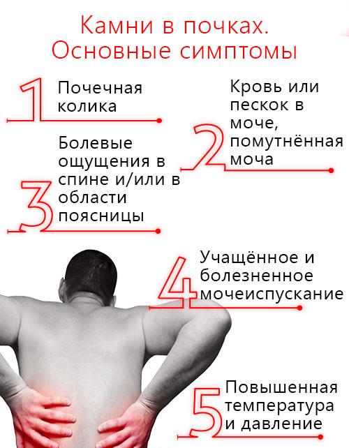 симптомы при камнях в почках